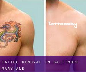 Tattoo Removal in Baltimore (Maryland)