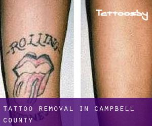 Tattoo Removal in Campbell County
