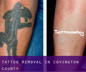 Tattoo Removal in Covington County