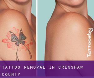 Tattoo Removal in Crenshaw County