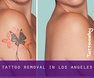 Tattoo Removal in Los Angeles