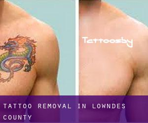 Tattoo Removal in Lowndes County