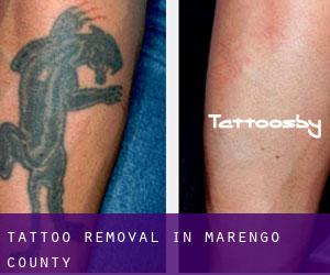 Tattoo Removal in Marengo County
