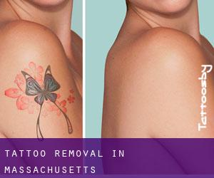 Tattoo Removal in Massachusetts