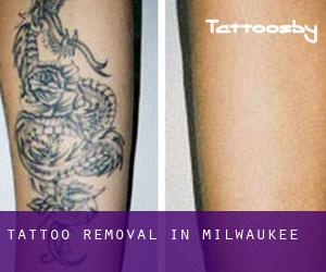 Tattoo Removal in Milwaukee