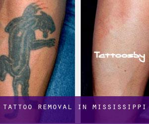 Tattoo Removal in Mississippi