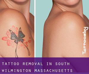 Tattoo Removal in South Wilmington (Massachusetts)