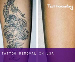 Tattoo Removal in USA