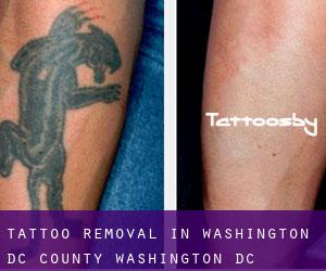 Tattoo Removal in Washington, D.C. (County) (Washington, D.C.)