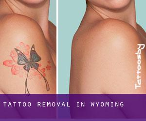 Tattoo Removal in Wyoming